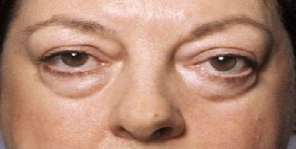 Bọng mắt lớn