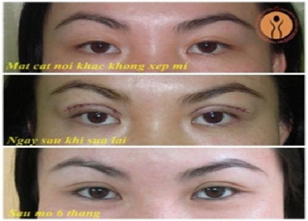 Thẩm mỹ mắt 2